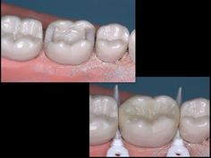 Dentaltown - Occlusal Stamp Technique for an MOD Composite. Has anyone ever tired the Occlusal Stamp Technique for an MOD Composite?  http://www.dentaltown.com/MessageBoard/thread.aspx?s=2&f=216&t=234761&v=1.
