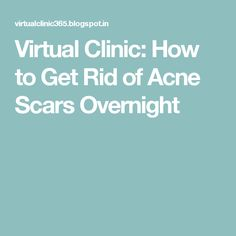 Virtual Clinic: How to Get Rid of Acne Scars Overnight