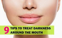 Remedies For Whiter Teeth Home Remedies for Darkness around Mouth and Lips. There can be dark skin near the lips and mouth which gets dark, natural treatments make the skin whiter Dark Skin Around Mouth, Darkness Around Mouth, Skin Whitening Soap, Teeth Whitening Remedies, Skin Tips, Skin Care Tips, Skin Treatments, Natural Treatments, Natural Remedies