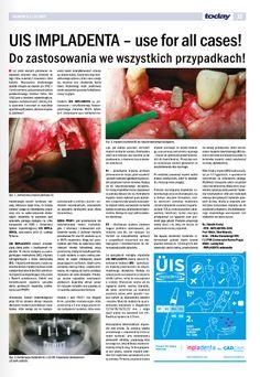 """UIS IMPLADENTA - zawiera kompleksową ofertę jednofazowych oraz dwufazowych implantów. """"DO ZASTOSOWANIA WE WSZYSTKICH ZAISTNIAŁYCH PRZYPADKACH!"""" Cad Cam, Krakow, Prague, Dental, Messages, Dentistry, Teeth, Tooth"""