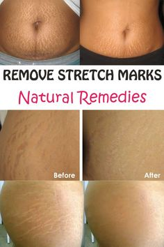 Natural remedies that can remove stretch marks