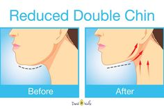 There are so many people who have the double chin. It is so much prevalent and even I have it. That is the reason why I am always forced to keep my face in a position when it comes to taking photos. I know there are so many like me out there who...