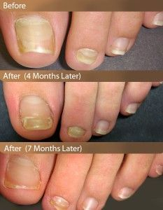 7 Best Nail Fungus Treatments images | Home remedies, Natural ...