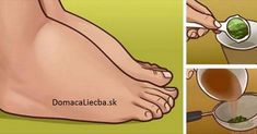 Watch This Video Ambrosial Home Remedies Swollen Feet Ideas. Inconceivable Home Remedies Swollen Feet Ideas. Foot Remedies, Arthritis Remedies, Headache Remedies, Blood Pressure Diet, Blood Pressure Remedies, Parsley Tea, Water Retention Remedies, Swollen Ankles, Swollen Belly