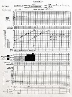 Partograf adalah alat bantu yang digunakan selama fase aktif persalinan.