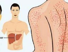 15 sinais de que seu fígado está doente - e como resolver o problema naturalmente - Receitas e Dicas