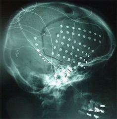 Video EEG Monitoring (Invasive Techniques) - Cedars-Sinai