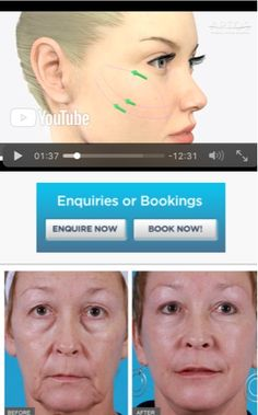 16 Best Non-Surgical Thread Lift images in 2019 | Thread