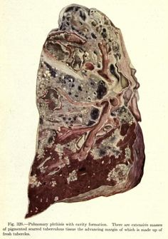 """Pulmonary phthisis with cavity formation. """"Phthisis"""" is referring to the wasting away and necrotizing of the lung tissues affected by the tubercules. Tuberculosis was really a pretty horrible way to..."""