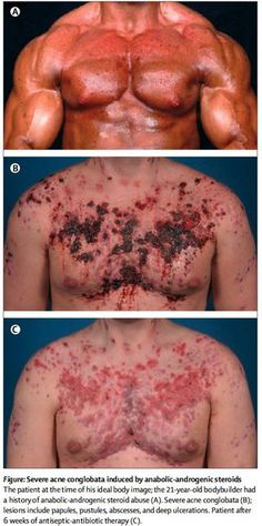 Image result for anabolic steroid acne