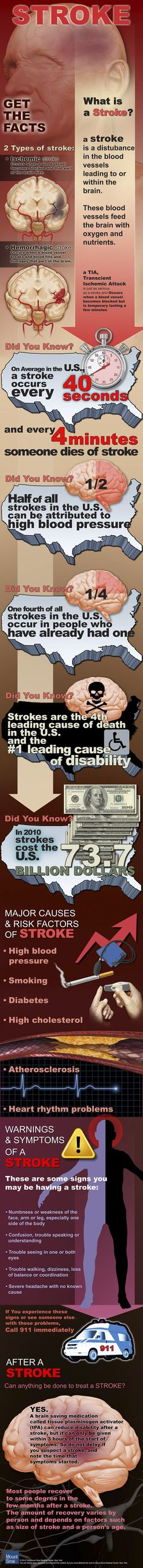 Get The Facts On Stroke
