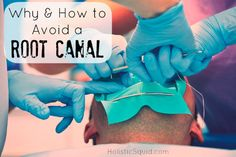 Why and How to Avoid a Root Canal - Holistic Squid