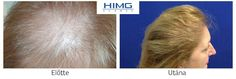 Hair Transplantation Before After photos. Hair Transplant at the best quality for a reasonable price! Budapest, Before After Photo, Hair Transplant, Body Parts, How To Remove, March, Women, Photos, Hair Colors