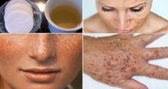 Please follow and like us: We all want clean and glowing face. Nobody likes acne, pimples, redness, winkles, or strains. There are a thousand of cosmetic products on the market promising their quickly removal, but there is always a natural alternative too. Today we will talking about stains and will present you a natural remedy …