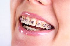 AFFORDABLE BRACES CLINIC BANGALORE!!!Braces are devices placed on the teeth and are used to align and straighten the teeth by using force and constant pressure.AMS Multispeciality Dental Clinic is one of the best dental clinic in Bangalore providing the Braces Treatment at an affordable prices.For more details visit us http://goo.gl/brIUPn