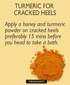 Turmeric For Facial Hair Remedies – Mix some turmeric with milk to make a thick paste. Then apply it on your face. After it dries off, rub it off using gentle circular motions. This would not only discourage facial growth but will also leave a glow on your face. DIYExfoliating turmeric face mask >> WHITEN …