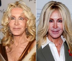 Joan Van Ark's plastic surgery is the definition of celebrity cosmetic surgery gone wrong! The before and after photos of her facelift are startling. Bad Celebrity Plastic Surgery, Bad Plastic Surgeries, Plastic Surgery Gone Wrong, Portland Oregon, Joan Van Ark, Mature Women Hairstyles, Kardashian, Celebrities Then And Now, Operation