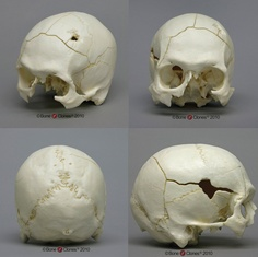 Human Male Skull Classic Entry-Exit Gunshot Wounds - Bone Clones, Inc. Skull Anatomy, Anatomy Art, Human Anatomy, Skull Head, Skull Art, Art Reference Poses, Drawing Reference, Drawing Sketches, My Drawings