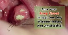 frequent strep throat infections adults