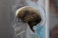 """""""Glucose reduces cerebral activity in brain regions that regulate appetite"""" Read more at http://exm.nr/XmYklf"""