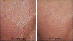 piel con poros abiertos y poros normales