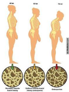 Tři lidové recepty na osteoporózu
