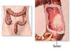 Fucoidan chữa ung thư trực tràng Thuốc fucoidan chữa ung thư trực tràng - Khỏi bệnh sau 5 năm bị hành hạ với ung thư trực tràng di căn. Anh Nguyễn Hữu Tiến, 54 tuổi, Bến Tre, Việt Nam.