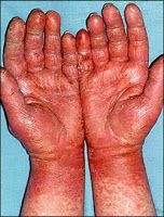 Latex allergies rn continued education latex allergy asthma care portland hand dermais treatment glove contact dermais latex glove showing allergic reactionSigns Symptoms Causes Of Avocado Latex Skin Allergy On HandsIt … Allergy Asthma, Allergy Symptoms, Dried Figs, Fresh Figs, Latex Glove Allergy, Rash On Hands, Fig Juice, Homemade Plant Food, How To Make Cheese