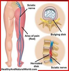 pain relief remedies: Effective Stretches For Sciatic Nerve Pain Relief Sciatic Nerve, Nerve Pain, Arthritis Relief, Pain Relief, Sciatica Relief, Scoliosis Exercises, Stretches, Yoga Sequence For Beginners, Natural Headache Remedies