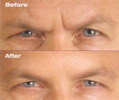 Botox treatment to glabellar area (before and after) Botox Before And After, Before After Photo, Clinic, Beauty, Beauty Illustration