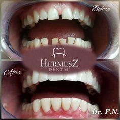 Sind die groBen Lücken zwischen Ihren Zähnen störend? Möchten Sie auch ein schönes Löcheln haben? Wir bieten Ihnen dafür die Lösung! Der gröBte Vorteil der Direktveneers ist, dass es zur geringster Dentinverlust führt. Für weitere Informationen kontaktieren Sie uns. Für eine kostenlose Beratung melden Sie sich telefonisch bei uns an oder kontaktieren Sie uns über die Webseite. Dental, Local Dentist Office, Nice Asses, Counseling, Website, Teeth, Dentist Clinic, Tooth, Dental Health