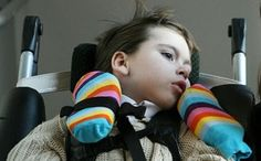 Paralisis cerebral severa indicadores de calidad de vida