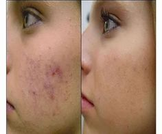 How to Get Rid of Acne Scars? (Home Remedies) How to get rid of acne scars fast and naturally by using home remedies and other acne scar treatment. Acne is a skin infection, which leaves ugly scar. Lr Beauty, Beauty Care, Fashion Beauty, Fast Fashion, Chemisches Peeling, Beauty Hacks For Teens, How To Get Rid Of Pimples, The Face, Womens Health Magazine