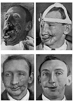 Four views of facial reconstruction after a war wound, July 1916 World War One, First World, Human Oddities, Vintage Medical, Medical History, Ww1 History, Military History, Plastic Surgery, Macabre
