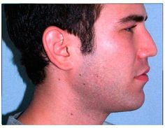 Chicago Chin Augmentation Before and After Photos - Naperville Plastic Surgery Photo Gallery - Dr. Facial Implant, Chin Implant, Plastic Surgery Photos, Photo Galleries, Chicago, Gallery, Roof Rack