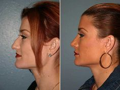Are you looking for the Best Rhinoplasty Surgeon in Florida? Check our site for ALL the info you need! We can help you answer all of your questions about selecting the very best Rhinoplasty Surgeon in Florida. http://rhinoplastysurgeonsflorida.com or http://www.youtube.com/watch?v=4KKTRzMHTB8