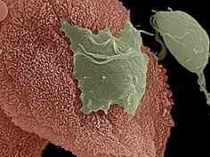 Many protozoan parasites (Trichomonas, Leishmania, Giardia, Plasmodium, Entamoeba, Nagleria, Eimeria, Cryptosporidium) are infected with viruses. These viruses do not infect vertebrates, but their double-stranded RNA genomes are sensed by the innate immune system, leading to inflammatory complications of protozoan infections. - http://www.PaulFDavis.com health coach (info@PaulFDavis.com)