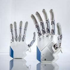 This Amazing Bionic Hand Can Actually Feel Someone's Touch