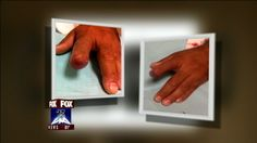 Doctors regenerate man's finger