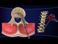 INTRACEPT..A Newly FDA Approved Treatment for Chronic Low Back Pain | Everyday pain management ideas