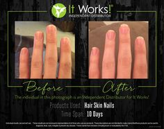 My personal results! I LOVE Hair Skin & Nails!