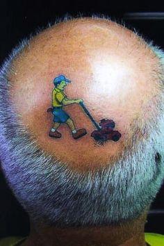 The latest male-pattern baldness treatment