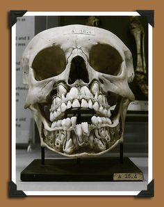 Antique medical specimen of a child's skull. Baby teeth in residence. Opportunistic adult teeth waiting to shove those wee ones out of the nest.