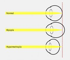 Diagram depicting emmetropic (normal), myopic, and hypertropic eyes. In myopia, light focuses in front of the retina, usually because of a long axial length, a steep corneal curvature, or a combination of the two. In hypermetropia, the converse is true—light focuses behind the retina, usually because of a short axial length, a flat corneal curvature, or a combination of both