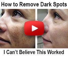 My dark spots in 2 weeks dark spot corrector review beverly hills