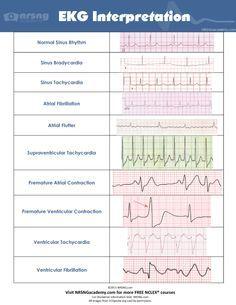 Ekg 2 ems study material pinterest school nclex and cardiology common ecg ekg rhythms fandeluxe Image collections