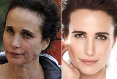 Chatter Busy: Andie MacDowell Makeup Free Kylie Jenner Plastic Surgery, Celebrity Plastic Surgery, Andie Macdowell, Makeup Photoshop, No Photoshop, Celebs Without Makeup, Facial Fillers, Lisa, Power Of Makeup