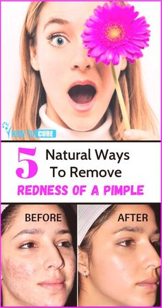 Pimples can be stubborn and difficult to treat, which is why turning to natural solutions may be the key to reducing redness and inflammation. Here are five natural remedies to help you to get rid of redness of pimple the fastest but safest way. Reduce Face Redness, Redness On Face, How To Reduce Pimples, Acne And Pimples, How To Treat Pimples, Pimple Face