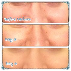 Seriously these results are amazing! I am in love with Nerium!