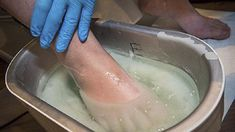 Лучшее средство против грибка на ногах и любых других грибковых заболеваний это, конечно же, диета. Почему у многих людей грибок появляется вновь и вновь?